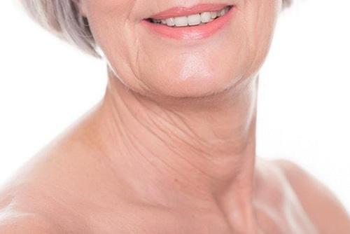 Глубокие морщины на шее