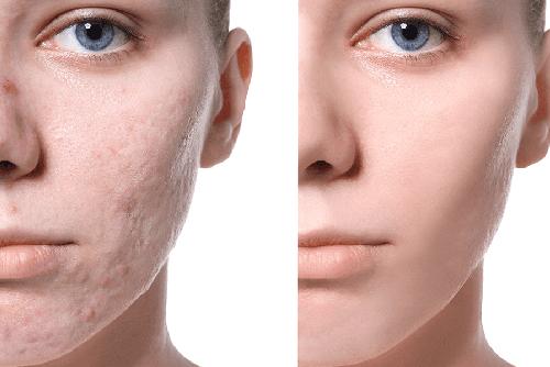 Чем убрать шрамы и рубцы на лице